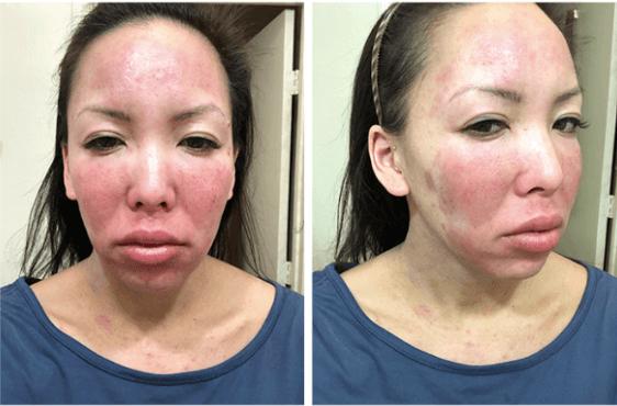 Hautreizung nach Gebrauch von unverdünnten ätherischen Ölen Weihrauchöl